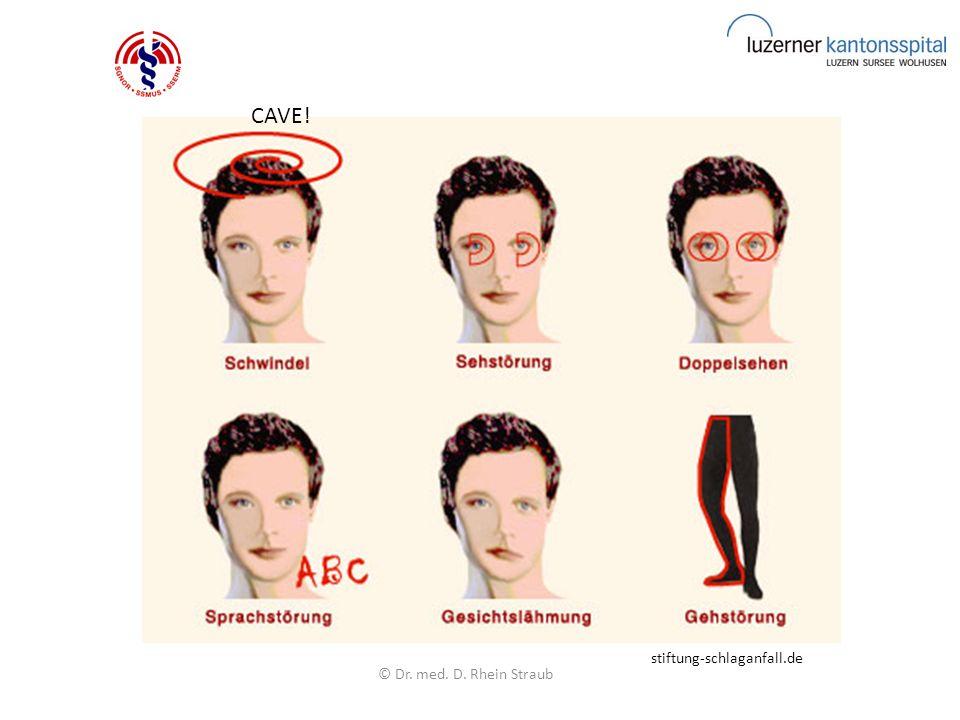 © Dr.med. D. Rhein Straub Instabile AP Ticagrelor=Brilique; KI: St.