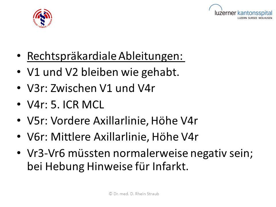 Rechtspräkardiale Ableitungen: V1 und V2 bleiben wie gehabt.