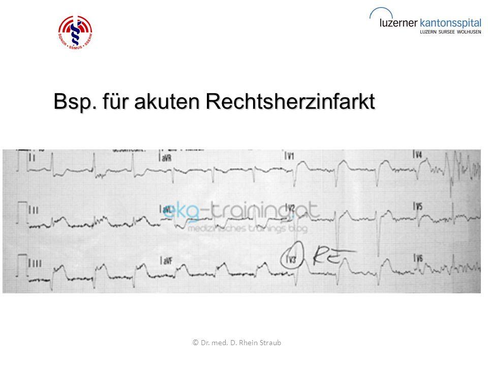 Bsp. für akuten Rechtsherzinfarkt Bsp. für akuten Rechtsherzinfarkt © Dr. med. D. Rhein Straub
