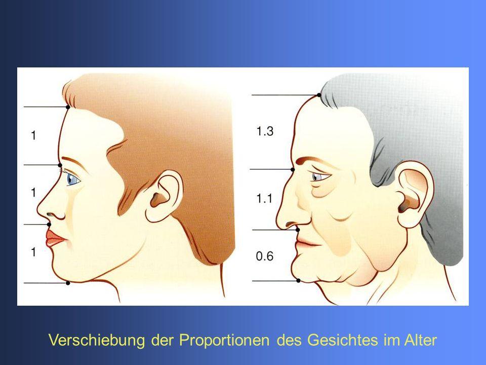 Verschiebung der Proportionen des Gesichtes im Alter