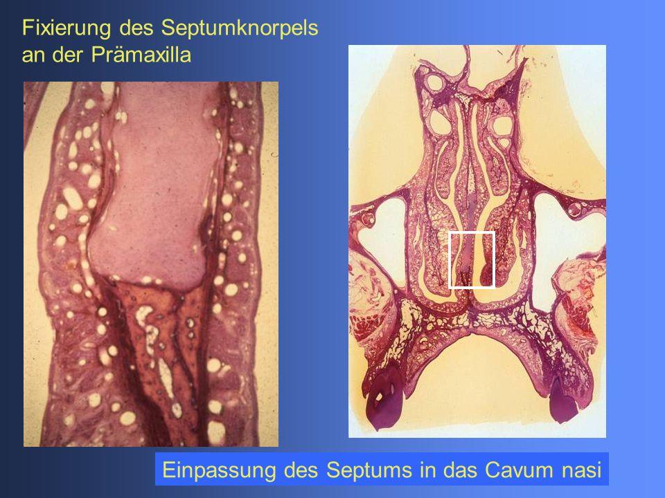 Einpassung des Septums in das Cavum nasi Fixierung des Septumknorpels an der Prämaxilla