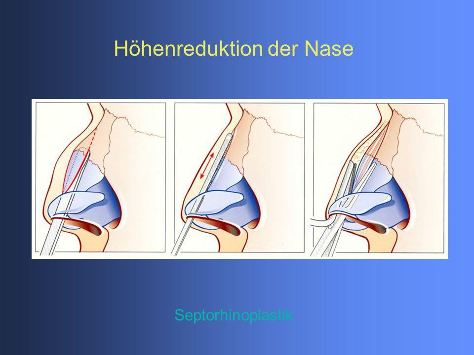 Septorhinoplastik Höhenreduktion der Nase