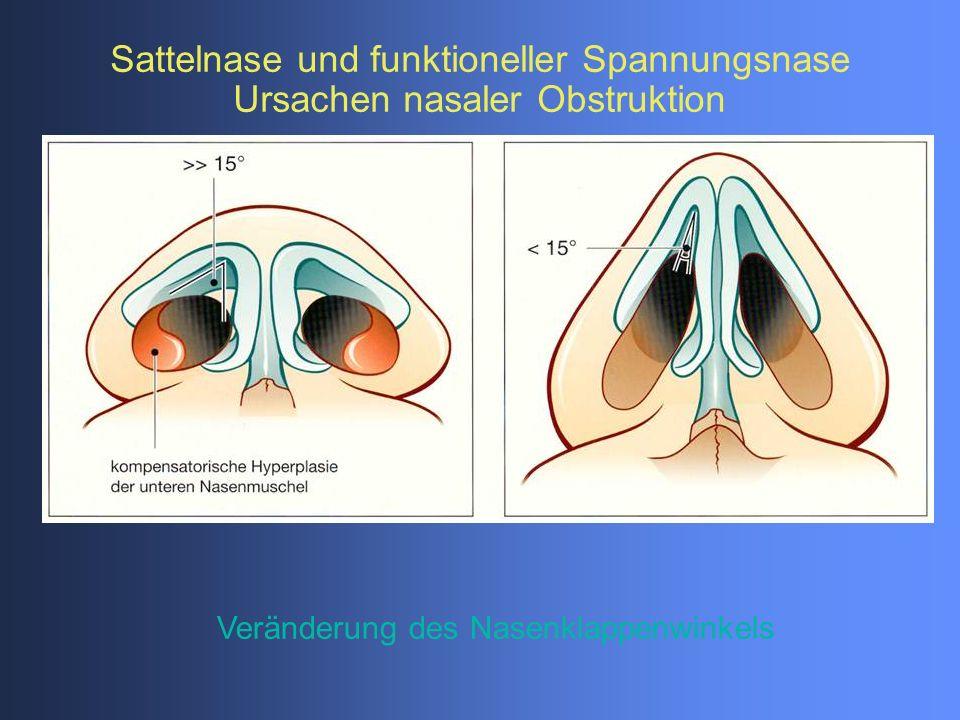 Veränderung des Nasenklappenwinkels Sattelnase und funktioneller Spannungsnase Ursachen nasaler Obstruktion
