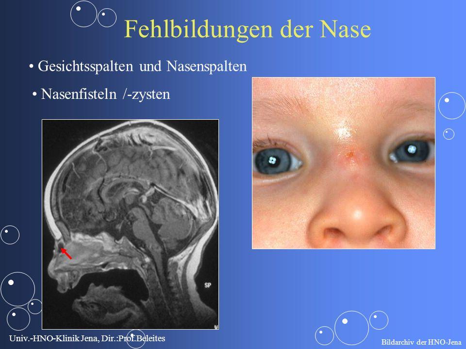 Univ.-HNO-Klinik Jena, Dir.:Prof.Beleites Fehlbildungen der Nase Gesichtsspalten und Nasenspalten Nasenfisteln /-zysten Bildarchiv der HNO-Jena