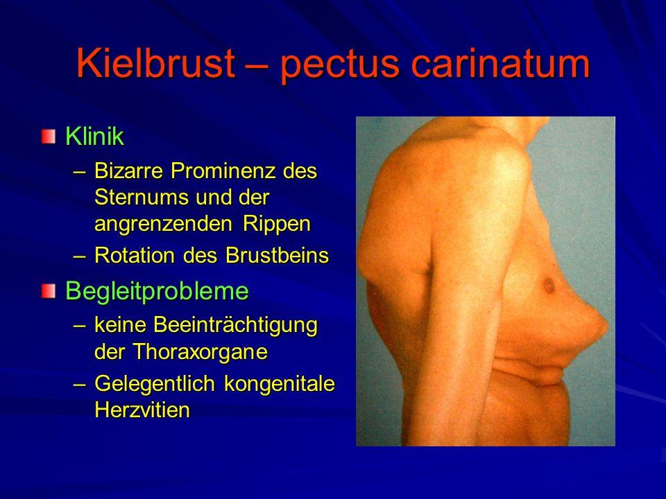 Kielbrust – pectus carinatum Klinik –Bizarre Prominenz des Sternums und der angrenzenden Rippen –Rotation des Brustbeins Begleitprobleme –keine Beeinträchtigung der Thoraxorgane –Gelegentlich kongenitale Herzvitien