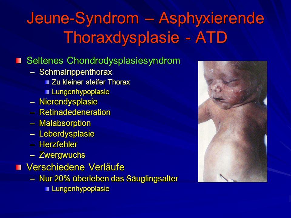 Jeune-Syndrom – Asphyxierende Thoraxdysplasie - ATD Seltenes Chondrodysplasiesyndrom –Schmalrippenthorax Zu kleiner steifer Thorax Lungenhypoplasie –Nierendysplasie –Retinadedeneration –Malabsorption –Leberdysplasie –Herzfehler –Zwergwuchs Verschiedene Verläufe –Nur 20% überleben das Säuglingsalter Lungenhypoplasie