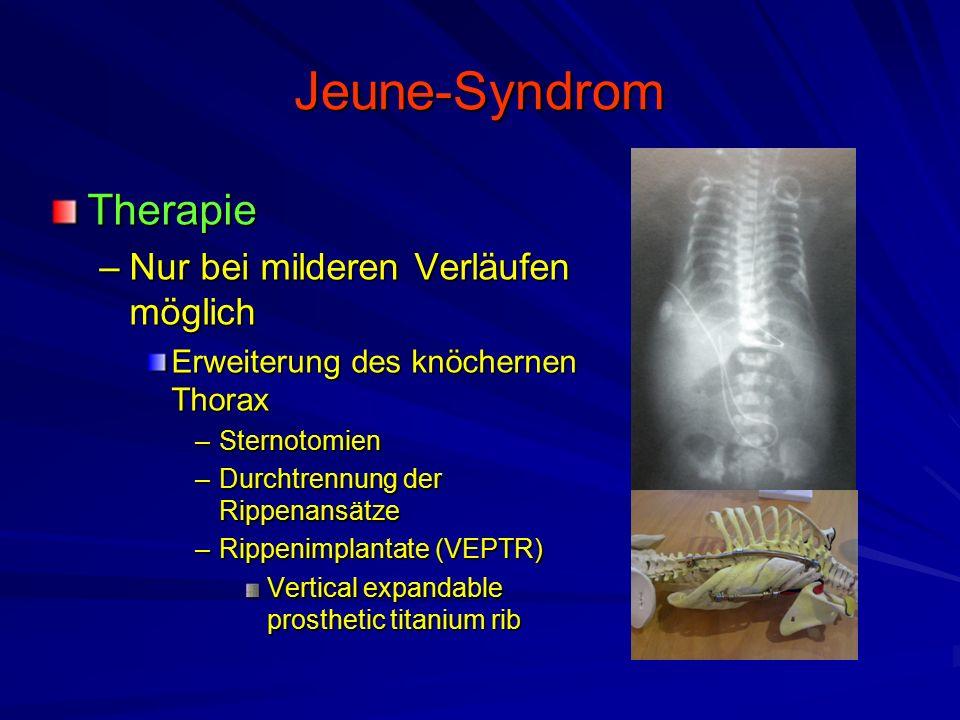 Jeune-Syndrom Therapie –Nur bei milderen Verläufen möglich Erweiterung des knöchernen Thorax –Sternotomien –Durchtrennung der Rippenansätze –Rippenimplantate (VEPTR) Vertical expandable prosthetic titanium rib