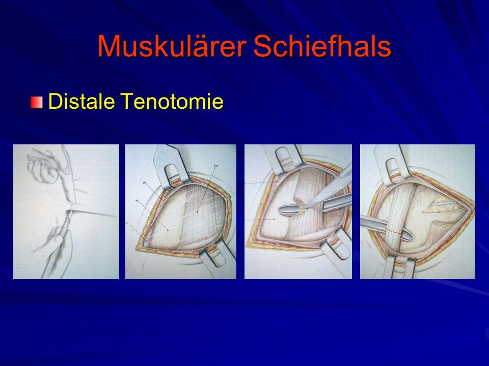 Muskulärer Schiefhals Distale Tenotomie