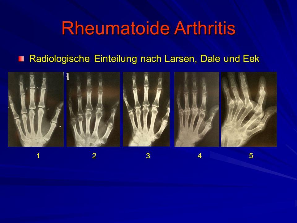 Rheumatoide Arthritis Radiologische Einteilung nach Larsen, Dale und Eek 12345