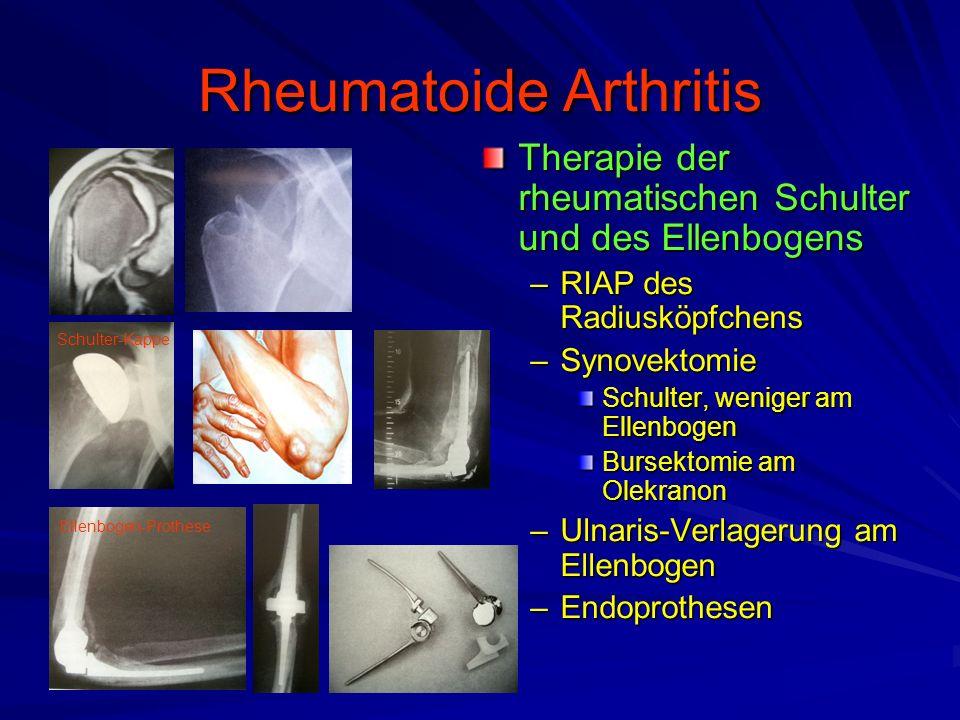 Rheumatoide Arthritis Therapie der rheumatischen Schulter und des Ellenbogens –RIAP des Radiusköpfchens –Synovektomie Schulter, weniger am Ellenbogen Bursektomie am Olekranon –Ulnaris-Verlagerung am Ellenbogen –Endoprothesen Ellenbogen-Prothese Schulter-Kappe