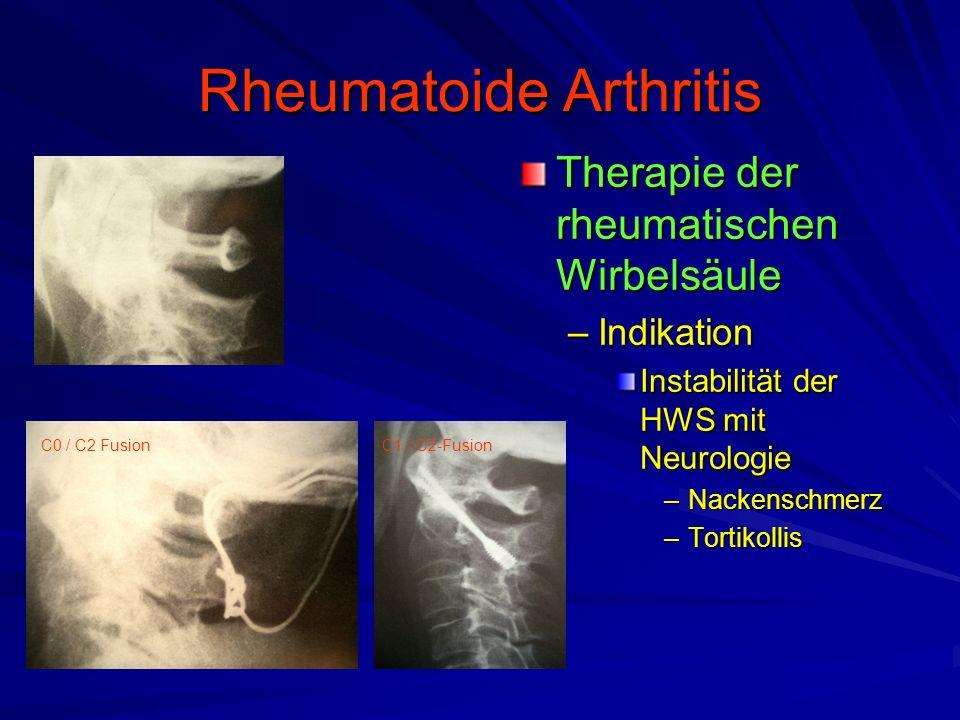 Rheumatoide Arthritis Therapie der rheumatischen Wirbelsäule –Indikation Instabilität der HWS mit Neurologie –Nackenschmerz –Tortikollis C0 / C2 FusionC1 / C2-Fusion