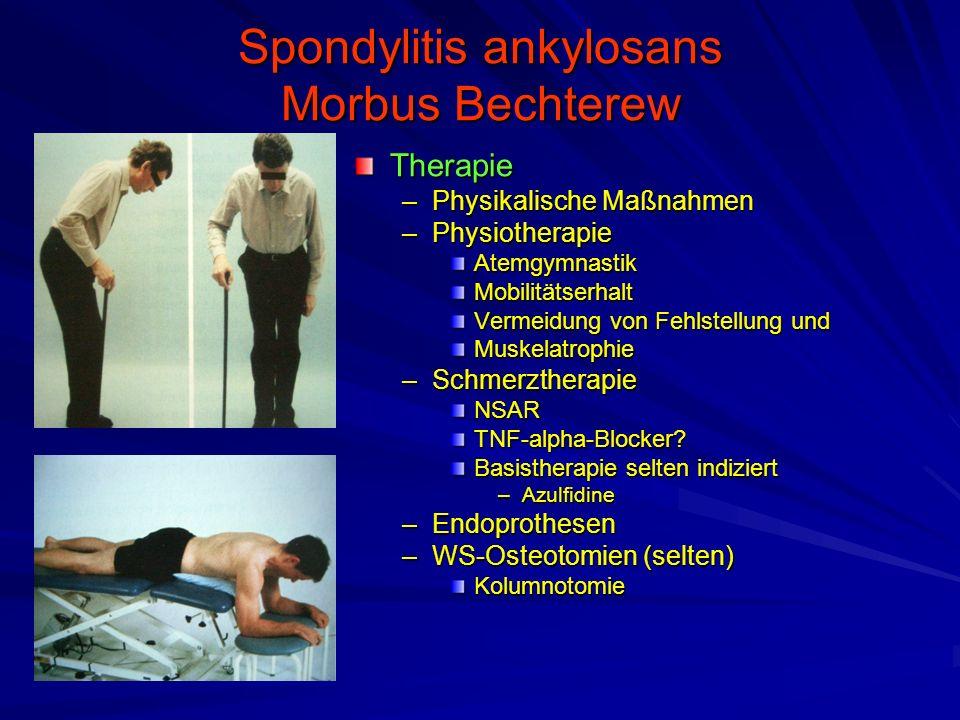 Spondylitis ankylosans Morbus Bechterew Therapie –Physikalische Maßnahmen –Physiotherapie Atemgymnastik Mobilitätserhalt Vermeidung von Fehlstellung und Muskelatrophie –Schmerztherapie NSAR TNF-alpha-Blocker.