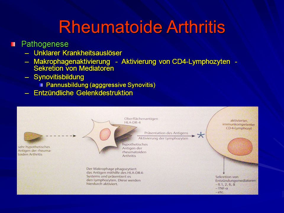 Rheumatoide Arthritis Pathogenese –Unklarer Krankheitsauslöser –Makrophagenaktivierung - Aktivierung von CD4-Lymphozyten - Sekretion von Mediatoren –Synovitisbildung Pannusbildung (agggressive Synovitis) –Entzündliche Gelenkdestruktion