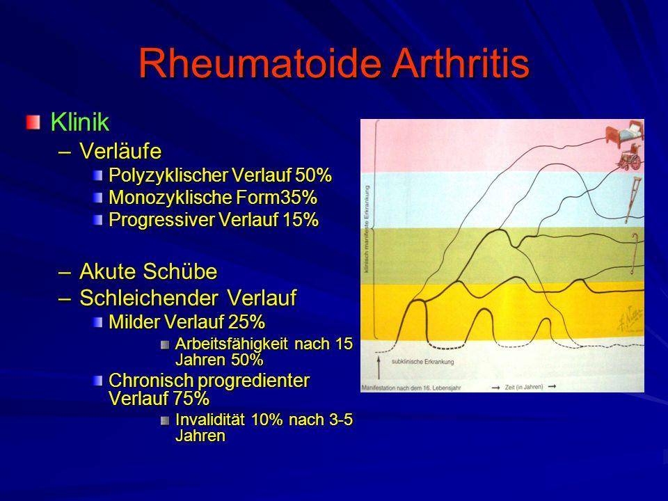 Rheumatoide Arthritis Klinik –Frühsymptome Morgensteifigkeit der Finger(grund)gelenke Endphasenschmerz der Gelenke bei Extension und Flexion –Faustschlussdefizit.