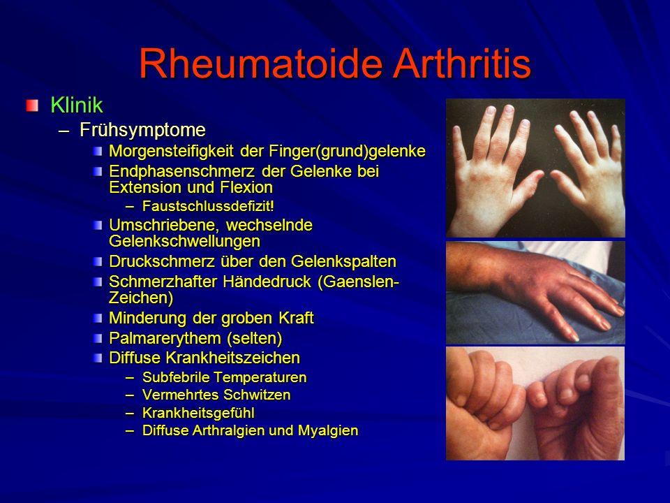 Rheumatoide Arthritis Klinik –Handfehlstellungen Einsinken der Intermetakarpalräume –Ulnarer Abrutsch der Streckerhaube KnopflochdeformitätSchwanenhalsdeformität 90 o /90 o (Z)-Deformität des Daumens Caput-ulnae-Syndrom Ulnardeviation des Handgelenkes –Handskoliose nach Shapiro Palmare Dislokation der Handwurzel Karpaler Kollaps –Funktionelle Störungen CTS Schnellender Finger Sehnenrupturen