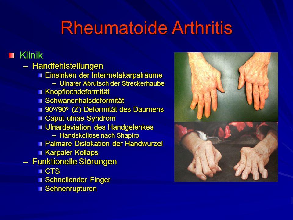 Spondylitis ankylosans Morbus Bechterew Klinik –ISG-Arthritis Morgendlicher Aufwachschmerz –Einsteifung der Wirbelsäule –Einsteifung der Rippen-Thoraxgelenke Verminderte Atembreite –Vorausgehende Monarthritis (20%) Hüft-, Knie- und Sprunggelenke Sterno-klavikular-Gelenke –Fersen-, Sternumschmerz (9%) –Extraartikuläre Symptome Iridozyklitis (25%) Aortitis (10%) Reizleitungsstörungen (1 - 4%)