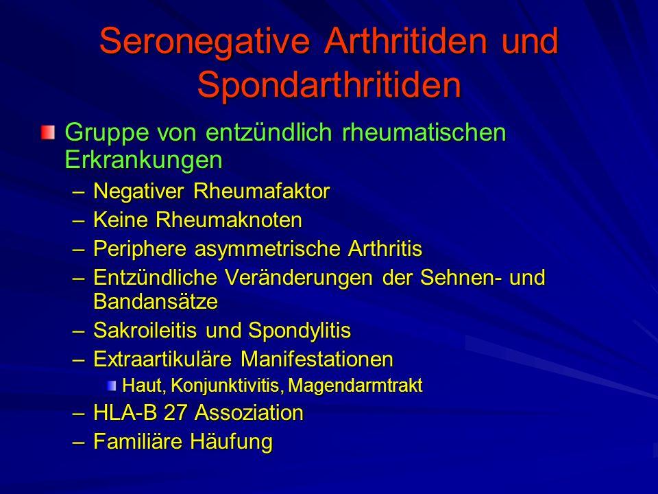 Seronegative Arthritiden und Spondarthritiden Gruppe von entzündlich rheumatischen Erkrankungen –Negativer Rheumafaktor –Keine Rheumaknoten –Periphere