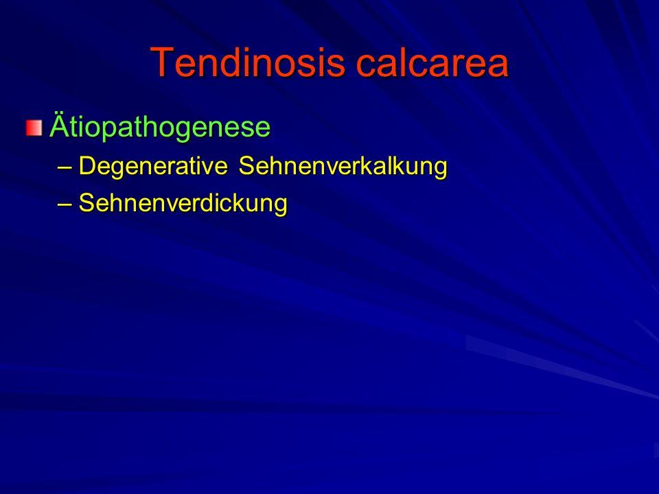 Tendinosis calcarea Ätiopathogenese –Degenerative Sehnenverkalkung –Sehnenverdickung