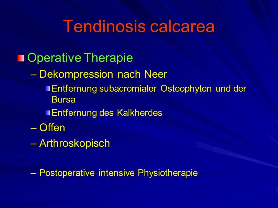 Tendinosis calcarea Operative Therapie –Dekompression nach Neer Entfernung subacromialer Osteophyten und der Bursa Entfernung des Kalkherdes –Offen –A
