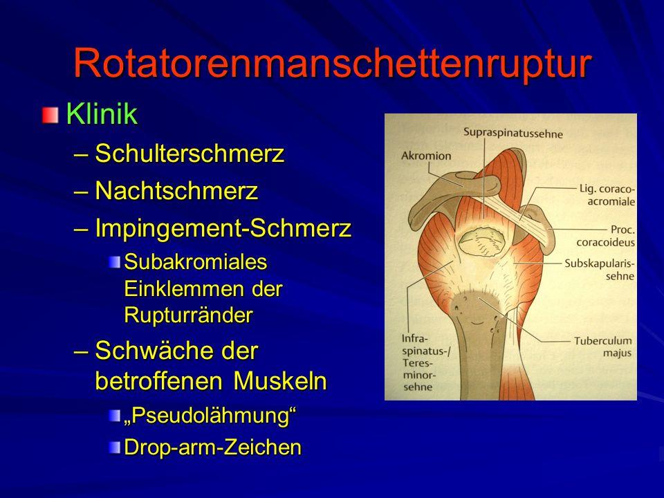 Rotatorenmanschettenruptur Klinik –Schulterschmerz –Nachtschmerz –Impingement-Schmerz Subakromiales Einklemmen der Rupturränder –Schwäche der betroffe