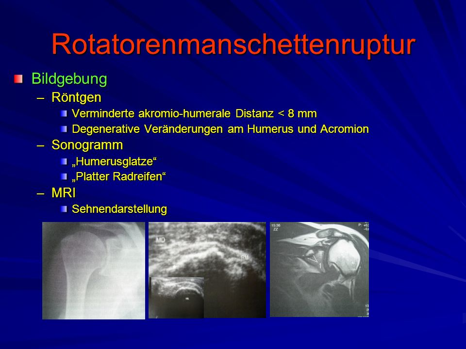 Rotatorenmanschettenruptur Bildgebung –Röntgen Verminderte akromio-humerale Distanz < 8 mm Degenerative Veränderungen am Humerus und Acromion –Sonogra