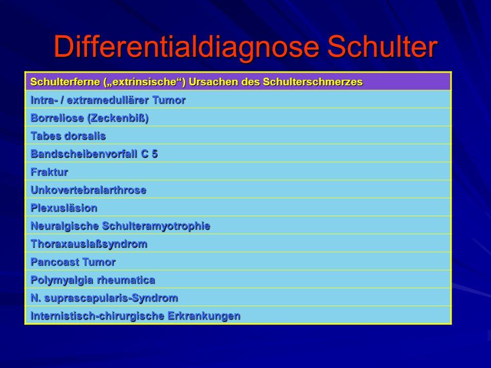 """Differentialdiagnose Schulter Schulterferne (""""extrinsische"""") Ursachen des Schulterschmerzes Intra- / extramedullärer Tumor Borreliose (Zeckenbiß) Tabe"""