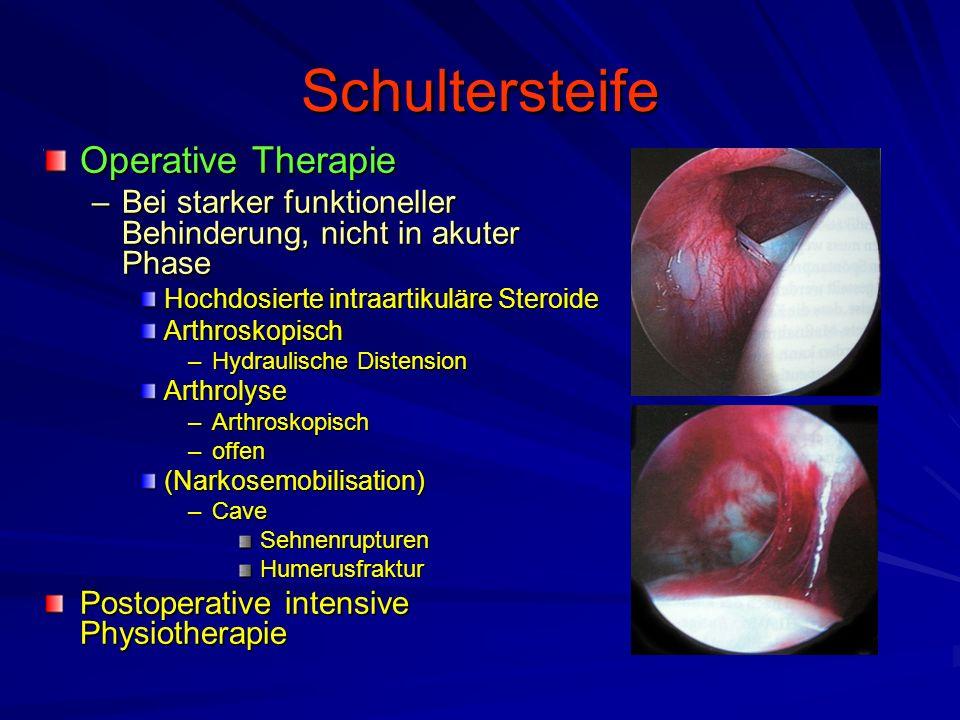 Schultersteife Operative Therapie –Bei starker funktioneller Behinderung, nicht in akuter Phase Hochdosierte intraartikuläre Steroide Arthroskopisch –
