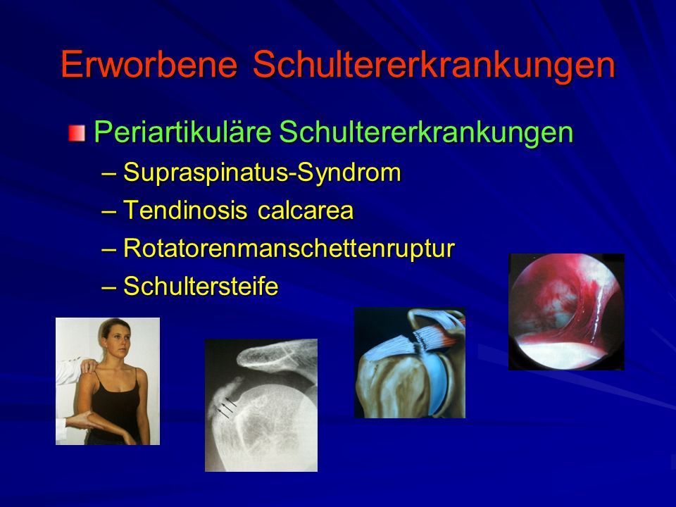 Erworbene Schultererkrankungen Periartikuläre Schultererkrankungen –Supraspinatus-Syndrom –Tendinosis calcarea –Rotatorenmanschettenruptur –Schulterst