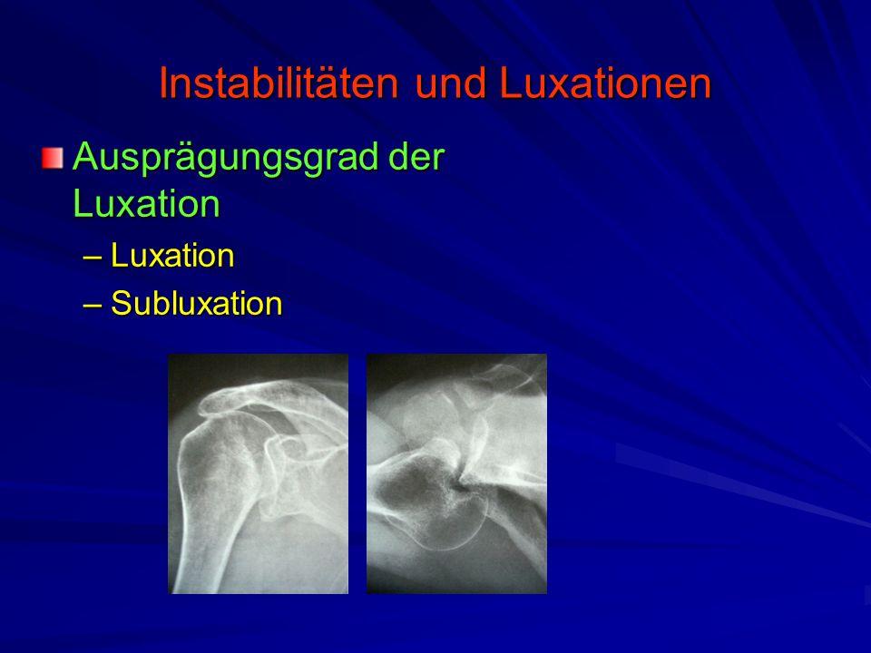 Instabilitäten und Luxationen Ausprägungsgrad der Luxation –Luxation –Subluxation