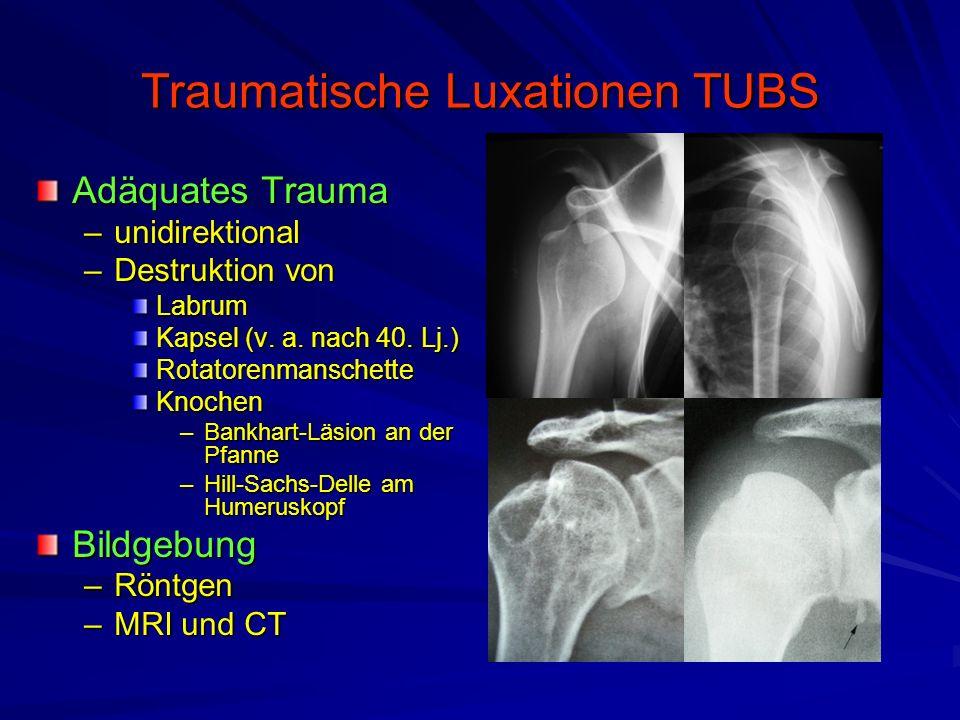 Traumatische Luxationen TUBS Adäquates Trauma –unidirektional –Destruktion von Labrum Kapsel (v. a. nach 40. Lj.) RotatorenmanschetteKnochen –Bankhart