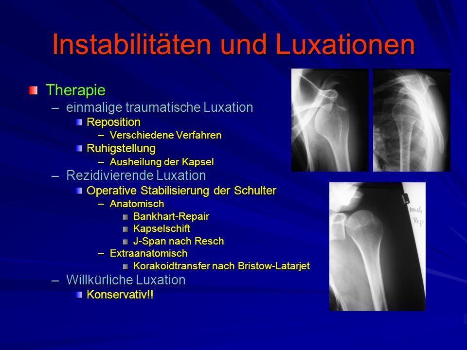 Instabilitäten und Luxationen Therapie –einmalige traumatische Luxation Reposition –Verschiedene Verfahren Ruhigstellung –Ausheilung der Kapsel –Rezid