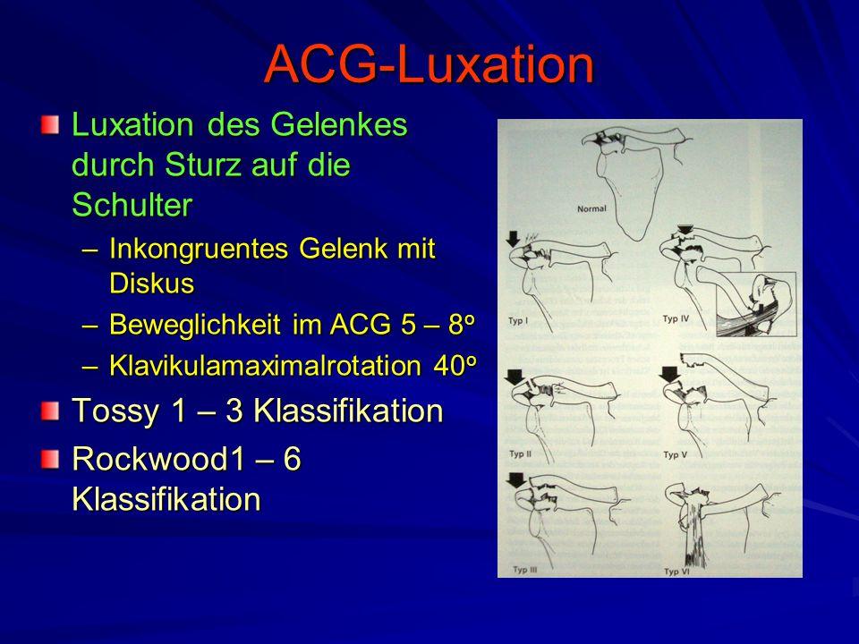 ACG-Luxation Luxation des Gelenkes durch Sturz auf die Schulter –Inkongruentes Gelenk mit Diskus –Beweglichkeit im ACG 5 – 8 o –Klavikulamaximalrotati