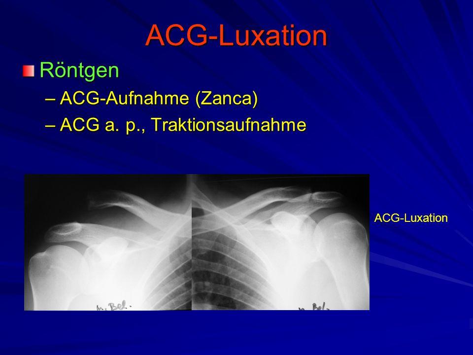 ACG-Luxation Röntgen –ACG-Aufnahme (Zanca) –ACG a. p., Traktionsaufnahme ACG-Luxation