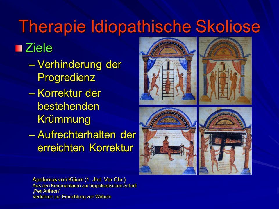 Therapie Idiopathische Skoliose Ziele –Verhinderung der Progredienz –Korrektur der bestehenden Krümmung –Aufrechterhalten der erreichten Korrektur Apolonius von Kitium (1.