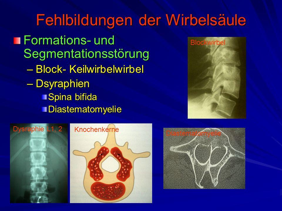 Fehlbildungen der Wirbelsäule Formations- und Segmentationsstörung –Block- Keilwirbelwirbel –Dsyraphien Spina bifida Diastematomyelie Diastematomyelie Blockwirbel Dysraphie L1, 2 Knochenkerne