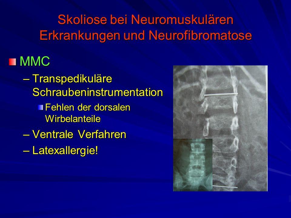 Skoliose bei Neuromuskulären Erkrankungen und Neurofibromatose MMC –Transpedikuläre Schraubeninstrumentation Fehlen der dorsalen Wirbelanteile –Ventrale Verfahren –Latexallergie!