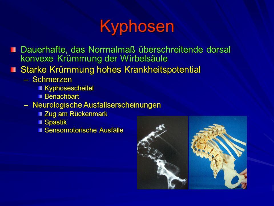 Kyphosen Dauerhafte, das Normalmaß überschreitende dorsal konvexe Krümmung der Wirbelsäule Starke Krümmung hohes Krankheitspotential –Schmerzen KyphosescheitelBenachbart –Neurologische Ausfallserscheinungen Zug am Rückenmark Spastik Sensomotorische Ausfälle