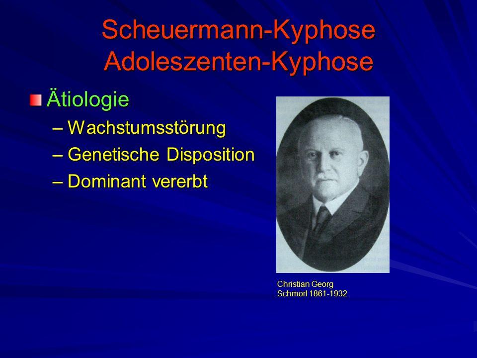 Scheuermann-Kyphose Adoleszenten-Kyphose Ätiologie –Wachstumsstörung –Genetische Disposition –Dominant vererbt Christian Georg Schmorl 1861-1932