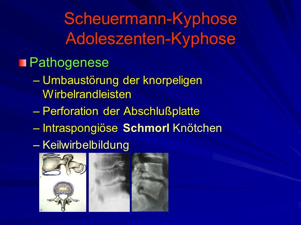 Scheuermann-Kyphose Adoleszenten-Kyphose Pathogenese –Umbaustörung der knorpeligen Wirbelrandleisten –Perforation der Abschlußplatte –Intraspongiöse Schmorl Knötchen –Keilwirbelbildung