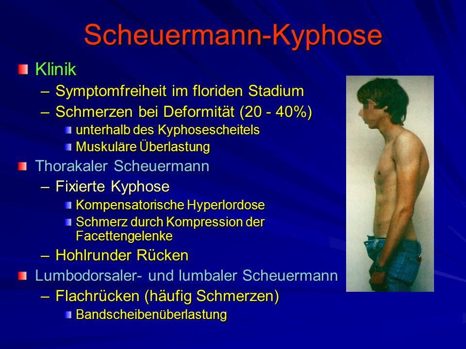 Scheuermann-Kyphose Klinik –Symptomfreiheit im floriden Stadium –Schmerzen bei Deformität (20 - 40%) unterhalb des Kyphosescheitels Muskuläre Überlastung Thorakaler Scheuermann –Fixierte Kyphose Kompensatorische Hyperlordose Schmerz durch Kompression der Facettengelenke –Hohlrunder Rücken Lumbodorsaler- und lumbaler Scheuermann –Flachrücken (häufig Schmerzen) Bandscheibenüberlastung