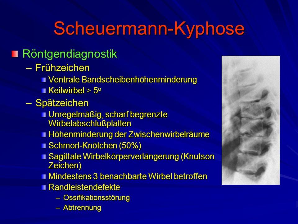 Scheuermann-Kyphose Röntgendiagnostik –Frühzeichen Ventrale Bandscheibenhöhenminderung Keilwirbel > 5 o –Spätzeichen Unregelmäßig, scharf begrenzte Wirbelabschlußplatten Höhenminderung der Zwischenwirbelräume Schmorl-Knötchen (50%) Sagittale Wirbelkörperverlängerung (Knutson Zeichen) Mindestens 3 benachbarte Wirbel betroffen Randleistendefekte –Ossifikationsstörung –Abtrennung