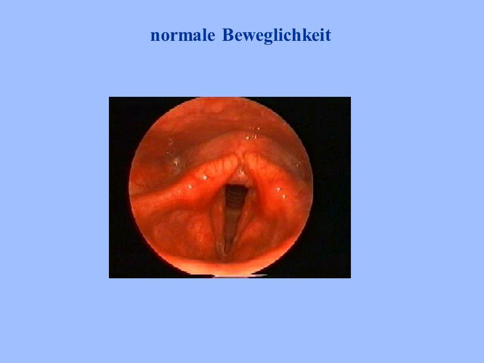 Untersuchungstechniken indirekte Laryngoskopie mit KK-spiegel a) Normale Sichtposition b) Position nach Killian c) Position nach Türck