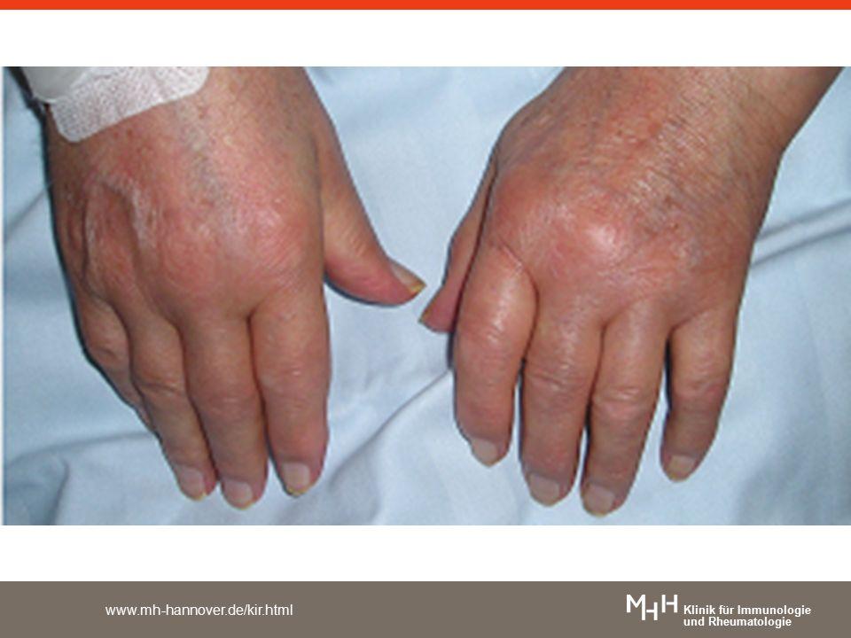 Klinik für Immunologie und Rheumatologie www.mh-hannover.de/kir.html