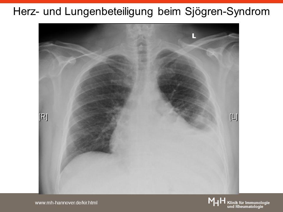 Klinik für Immunologie und Rheumatologie www.mh-hannover.de/kir.html Herz- und Lungenbeteiligung beim Sjögren-Syndrom