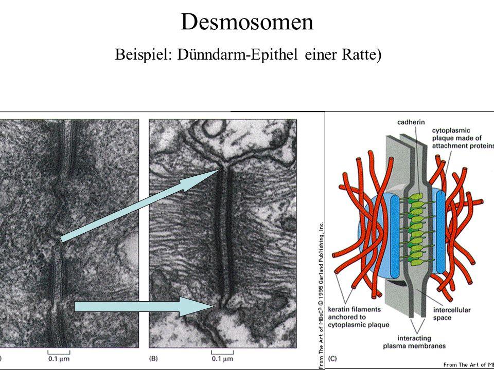 Desmosomen Beispiel: Dünndarm-Epithel einer Ratte)