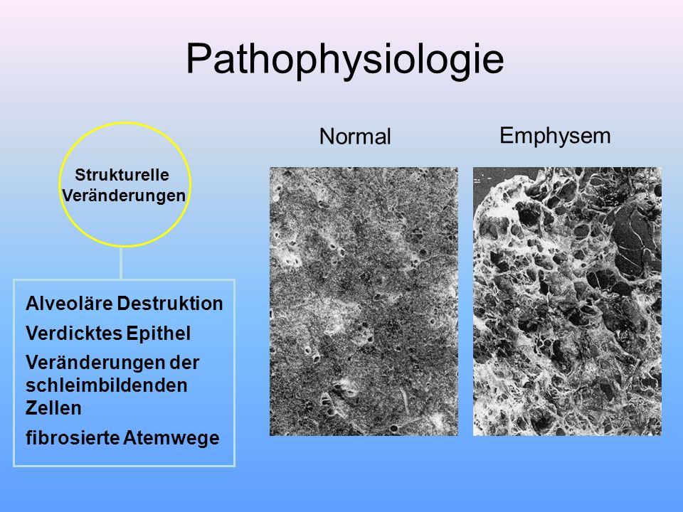 Strukturelle Veränderungen Alveoläre Destruktion Verdicktes Epithel Veränderungen der schleimbildenden Zellen fibrosierte Atemwege Normal Emphysem Pat