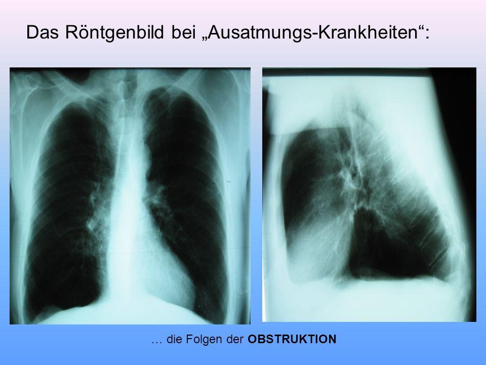 """Das Röntgenbild bei """"Ausatmungs-Krankheiten"""": … die Folgen der OBSTRUKTION"""