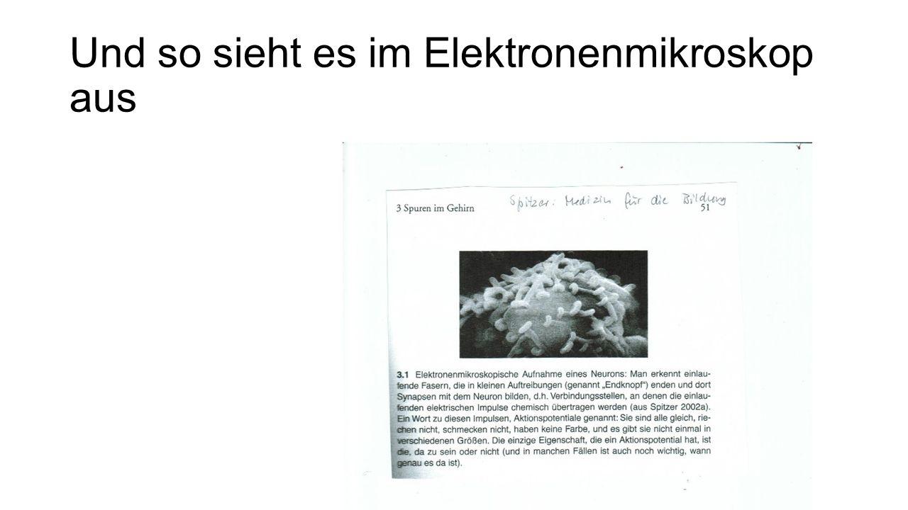Und so sieht es im Elektronenmikroskop aus