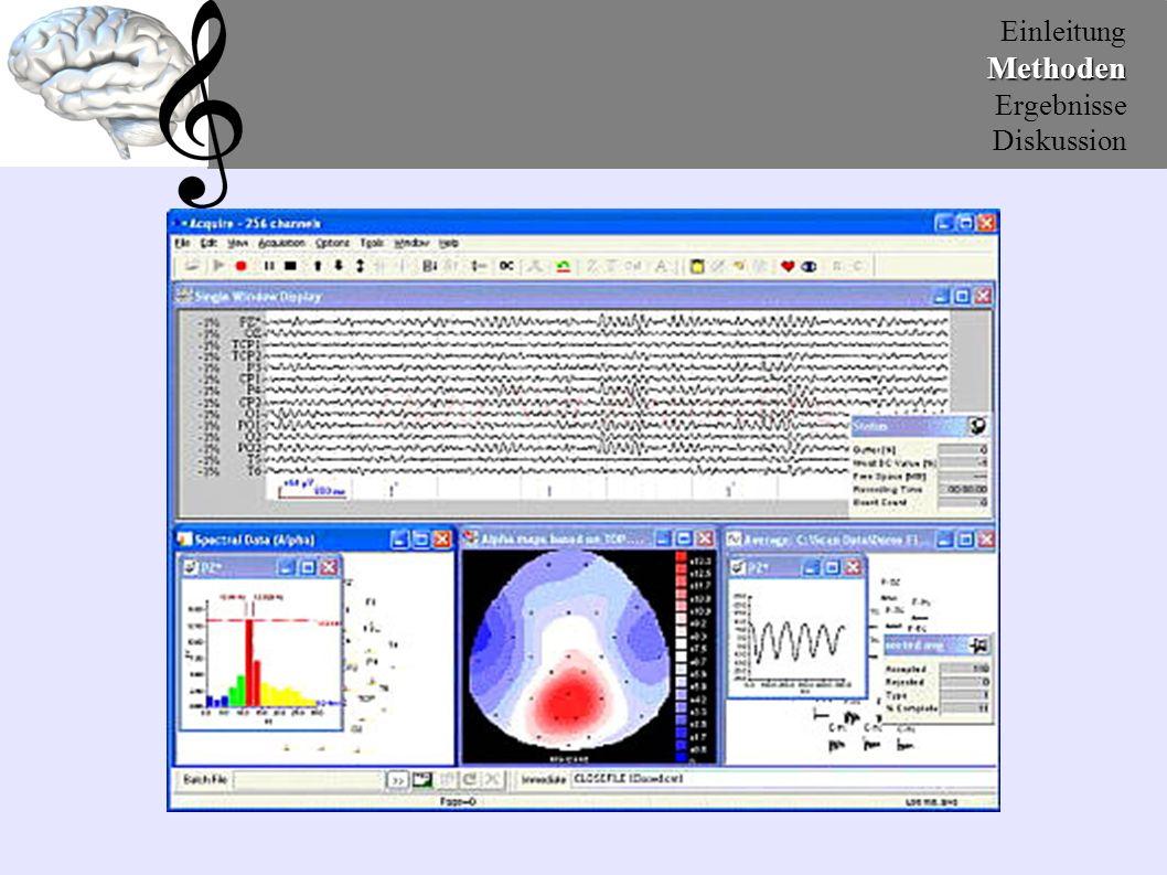 EinleitungMethoden Ergebnisse Diskussion Unabhängige Variablen: Bewertung (Positiv, Negativ) Stimulus (Jazz, Pop-Rock, Klassik, Umweltgeräusche) Geschlecht (m/w) Elektroden (32 Punkte) Lateralisation (10 Paare) 6.) Datenanalyse Abhängige Variable: Amplitudenwerte
