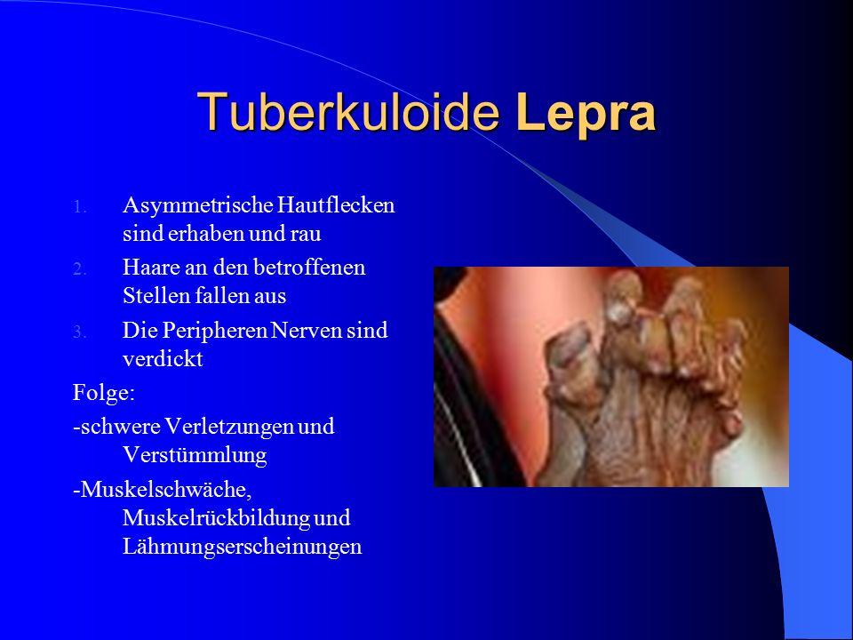 Tuberkuloide Lepra 1. Asymmetrische Hautflecken sind erhaben und rau 2. Haare an den betroffenen Stellen fallen aus 3. Die Peripheren Nerven sind verd